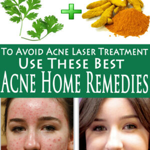 To Avoid Acne Laser Treatment Use These Best Acne Home Remedies