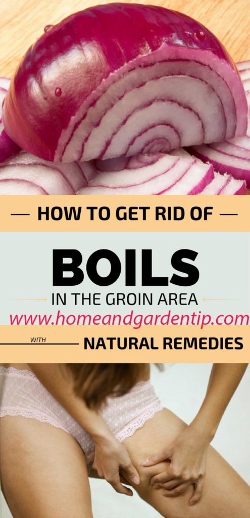 Boils In The Groin Area With Natural Remedies