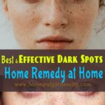 Best and Effective Dark Spots Home Remedy at Home