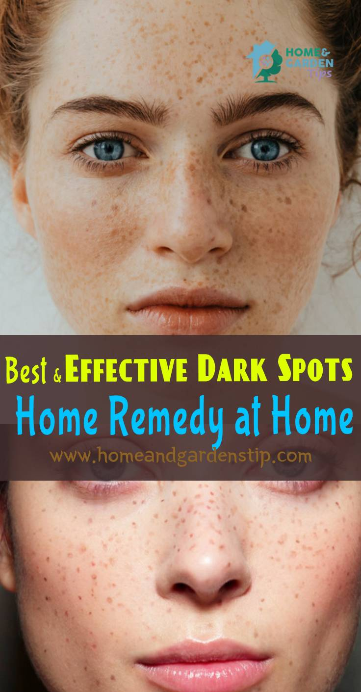 You are currently viewing Best and Effective Dark Spots Home Remedy at Home