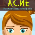 How to Get Rid Of Pimples And Acne In 1 Night Naturally at Home
